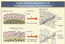 fisiopatologia-da-osteoartrose