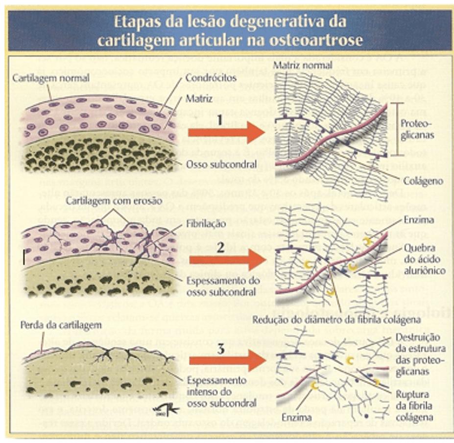Esclerosis Subcondral Epub