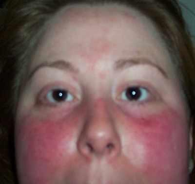 Eritema malar presso LES