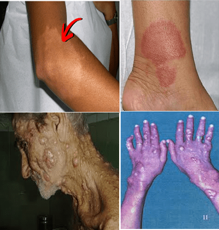 Clinical forms of leprosy