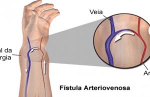 fístula arteiovenosa em região radial.
