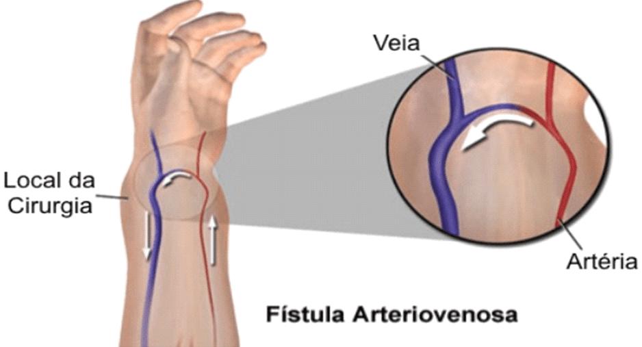 arteiovenosa fistule radiale région.