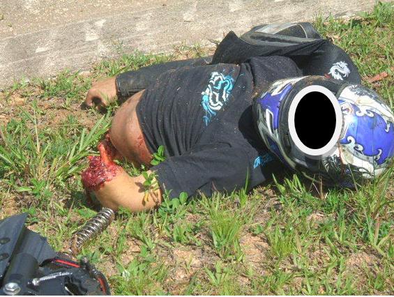 Acidente fatal envolvendo motociclista e defensa metálica, com dilaceração de membros superiores e inferiores do tronco, mediante choque. Fonte: http://www.falcononline.com.br/forum/index.php?topic=3032.45no-vale-verde/