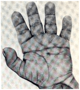 "FIGURE 7 - Characteristics of the hand of a child with SD: fold in the plama and a single fold in the little finger. Source: Page ""Syndromes and evils"" [4]"