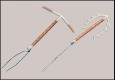 Figura 08 – Dispositivo Intra-uterino (DIU). Fonte: (46)