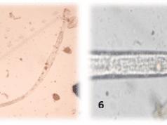 Figura 3: Larvas de Labiduris spp (1 e 2) detectadas nos exames coproparasitológicos de jabutis. Laboratório de Doenças Parasitárias, Niterói, Rio de Janeiro. 2016.