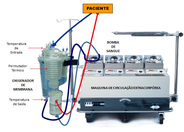 Figura 1: Esquematização do equipamento de Circulação Extracorpórea (Adaptação Fonseca19 et al. 2008).