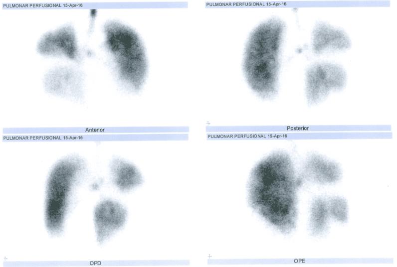 Figura 3 – Cintilografia pulmonar - estudo perfusional encontra-se heterogêneo bilateralmente, com múltiplos déficitis perfusionais. (15/04/16)