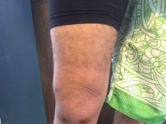 Figura 1: Joelho lesionado no primeiro dia de atendimento, evidenciando o edema/dados da pesquisa.