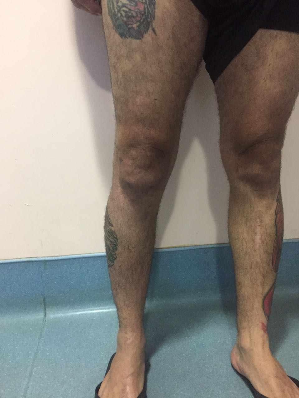 Figure 2: blessure au genou le dernier jour de présence, montrant les données de recherche/oedème a diminué.