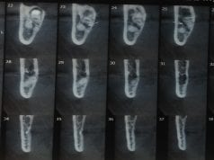 Figura 1: TC da relação do NAI com as raízes do terceiro molar inferior com corte coronal. Fonte: Próprio Autor