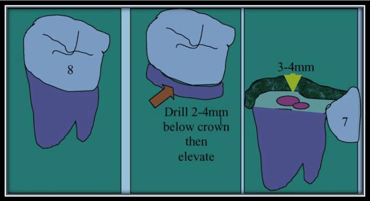 Figura 3: Diagrama representativo do procedimento cirúrgico da coronectomia efetuada. Fonte: Renton (2005)
