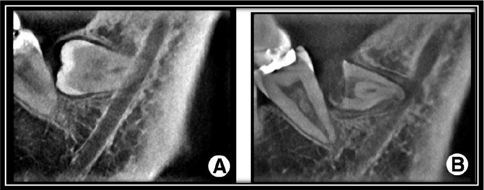 Figura 4 - A, TC preoperatória. B, TC 3 meses após a coronectomia. Fonte: Garrido (2013)